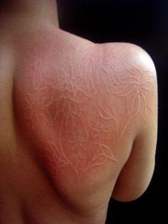 جلد شخص مصاب بكتوبية الجلد نفس حالة من يدعون انها معجزة الهية ولكنه كتب كتابة اعتيادية هنا