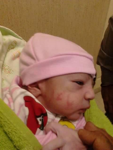 السبب العلمي للكتابات على جلد الطفل او سبب بقاءها بعد كتابتها