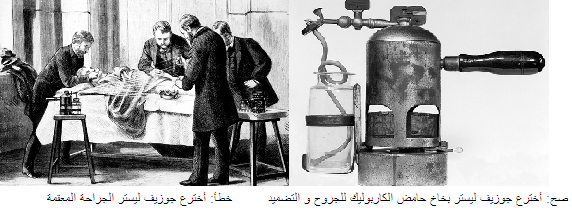 حوزيف ليستر استخدم حامض الكاربوليك واكتشف دوره التعقيمي للجروح والتضميد لكنه لم يخترع الجراحة المعقمة