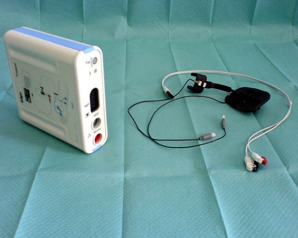 نبضات كهربائية للعصب