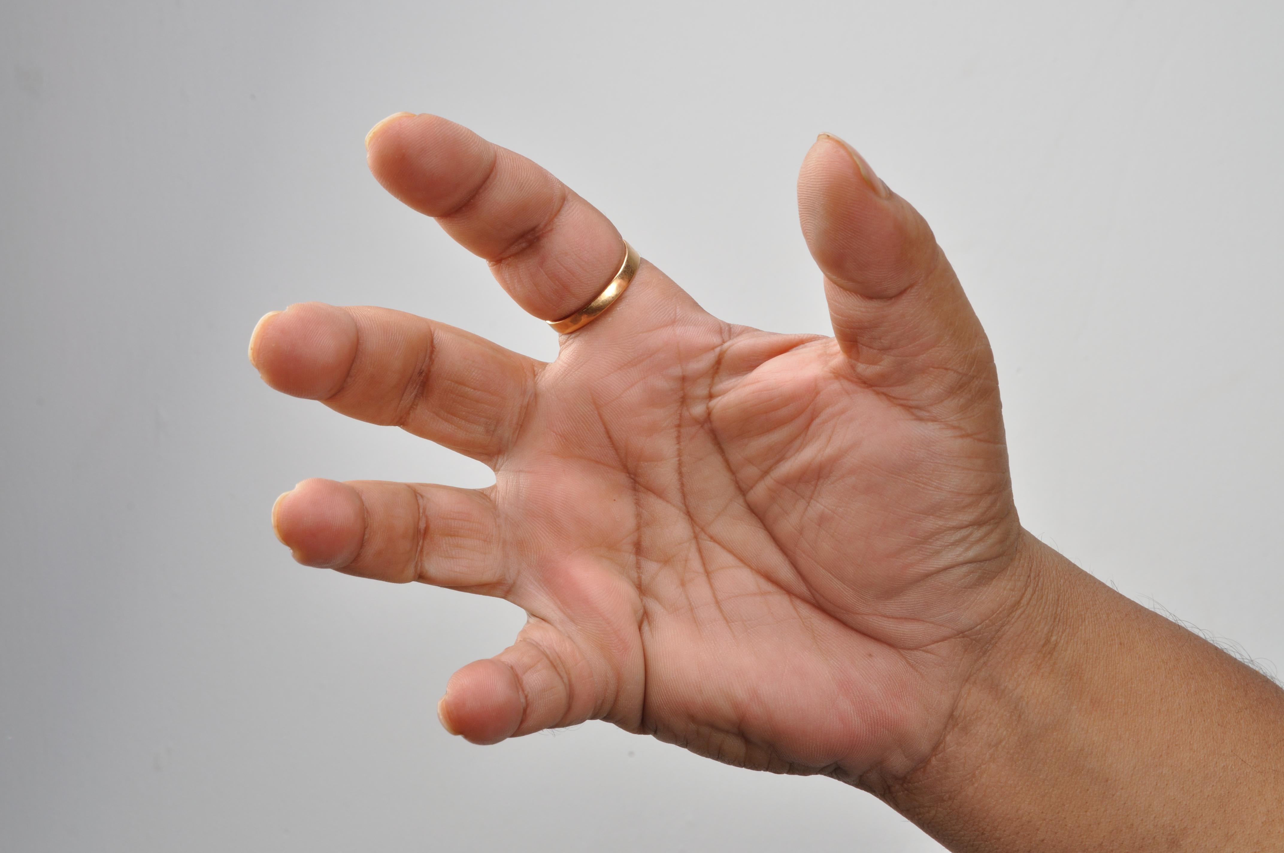 براعة يد الإنسان
