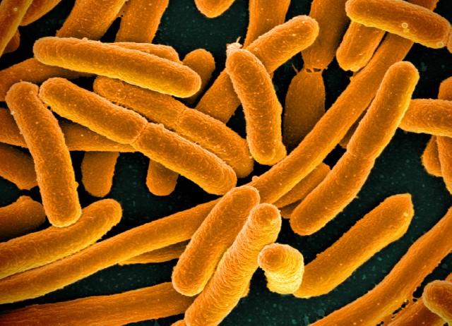 تعديل الجينات لبكتيريا الاشريكية القولونية