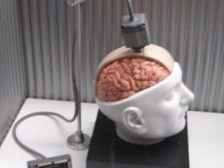تقنية الليزر للتحكم بالدماغ