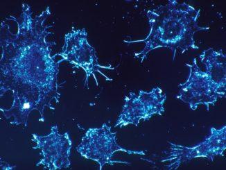تجويع الخلايا السرطانية
