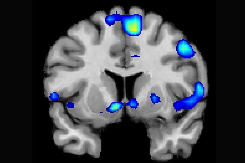 منطقة الاله في الدماغ