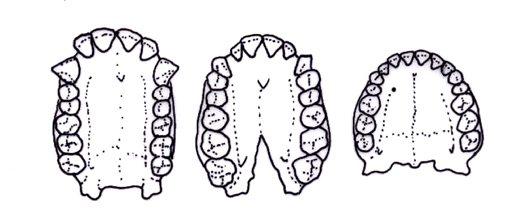 ترتيب الأسنان داخل الفك لدى الإنسان الحديث مقارنة بأسلافه