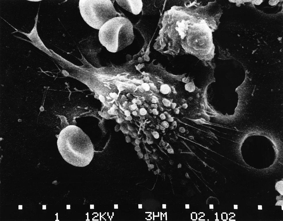 خلية سرطانية اثناء الموت
